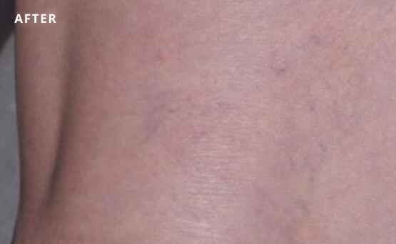 Leg veins after laser treatment