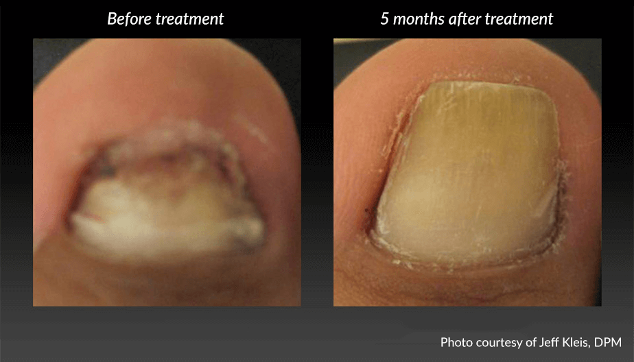 Before and After Toenail Fungus